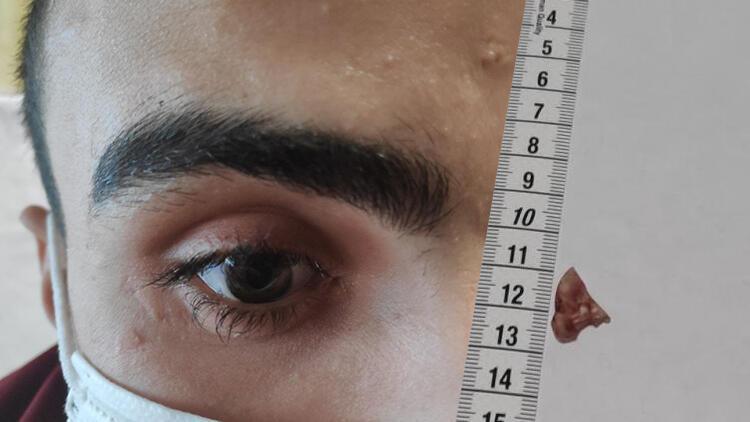 Hayatı kâbusa döndü! Gözünde 1 ay cam parçasıyla yaşadı