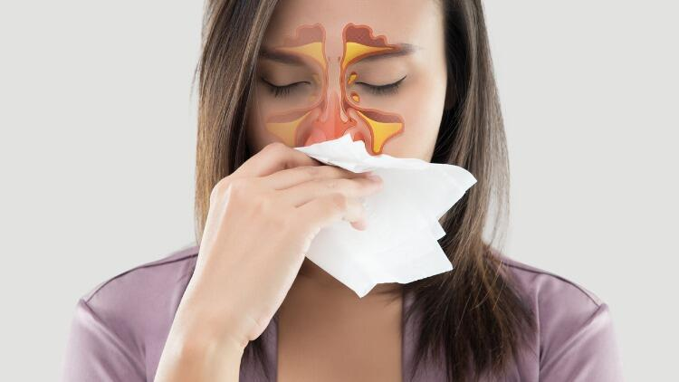 Soğuk Havaların Hastalığı: Sinüzit Belirtileri ve Tedavisi
