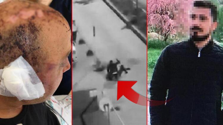 Eskişehir'de polis memurunu telsizle dövmüştü! Yeni gelişme
