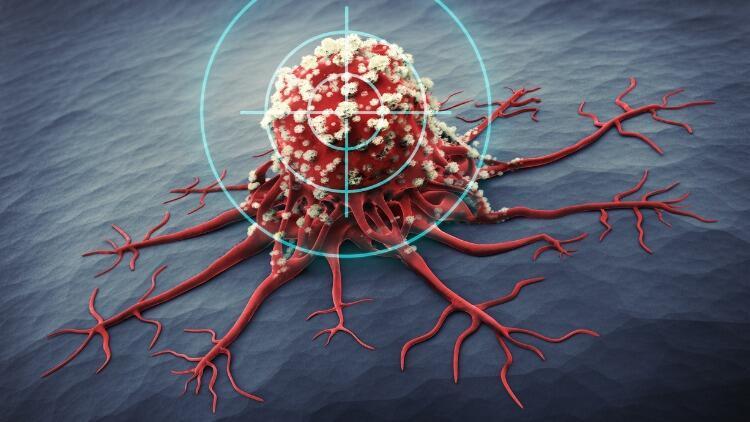 Çağımızın Hastalığı Kanser Artmaya Devam Ediyor! Kansere Dair Güncel Bilgiler