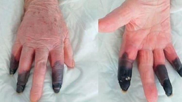Kovid-19'a yakalandı, kangren olan parmaklarını kaybetti!