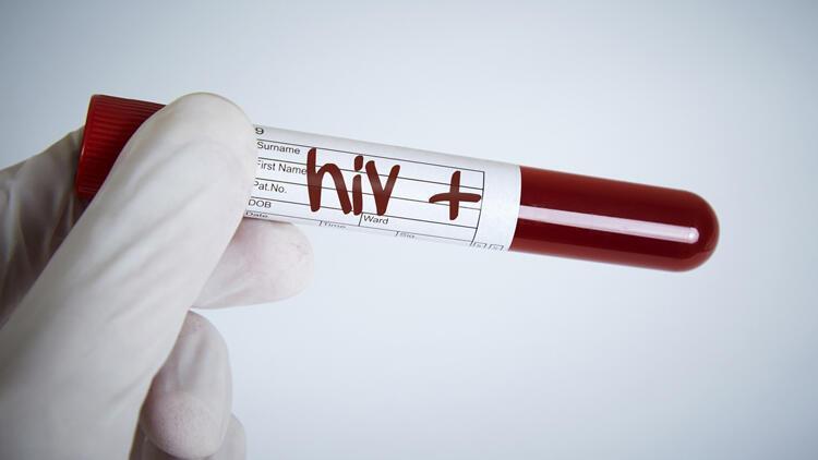 HIV virüsü nedir ve nasıl bulaşır? HIV hastalığı tedavisi ile ilgili merak edilenler