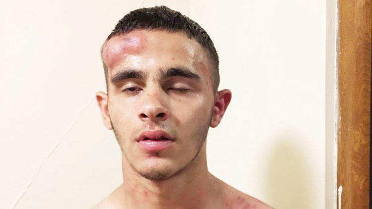 Polis şehit eden saldırgan cezaevinde öldü