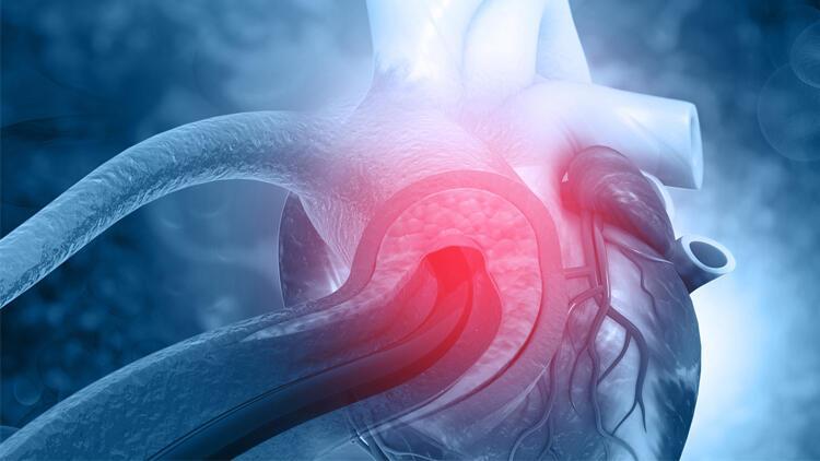 Sessiz düşman: Aort diseksiyonu