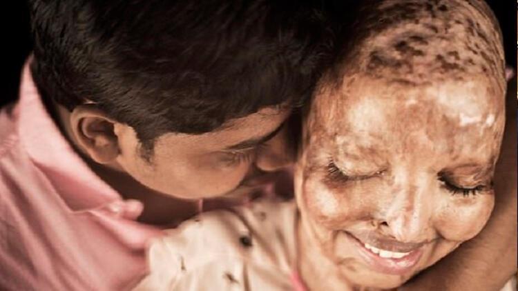 Hindistan'da asitli saldırıya uğrayan kadın gerçek aşkı 13 yıl sonra buldu
