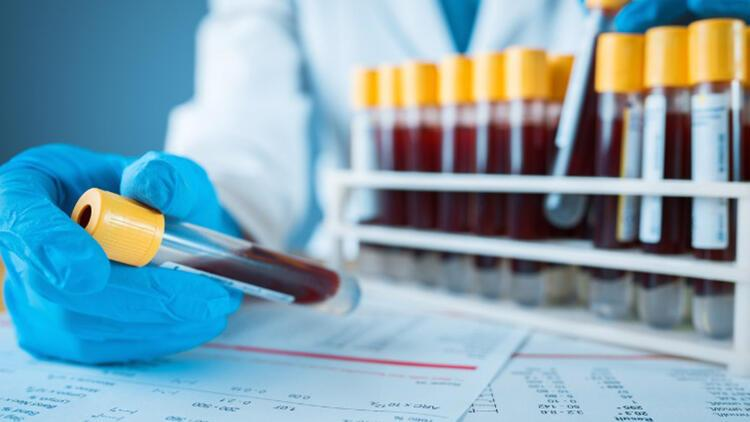 Bilim insanları inceledi... Kan grubu Covid-19'u etkiliyor mu?