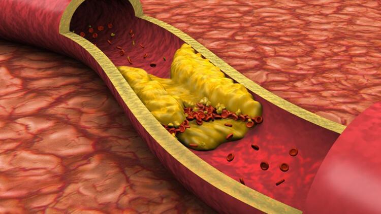 Kolesterol neden olur, belirtileri nelerdir? İşte kolesterolü düşüren besinler