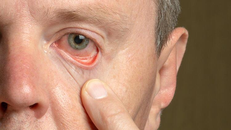 Sigara gözlerinizi yaşlandırır