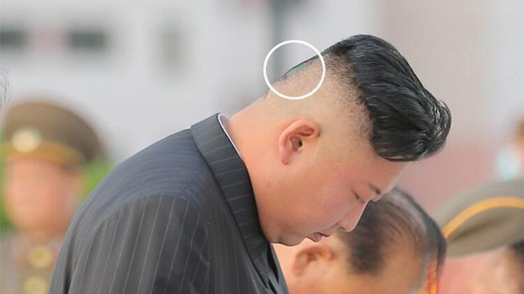 Dünya bu fotoğrafları konuşuyor... Kim Jong Unun son hali görenleri şoke etti