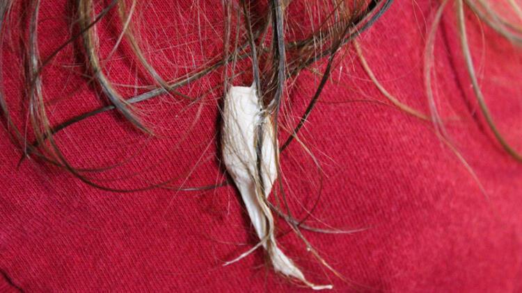 Saça yapışan sakız nasıl çıkar? İşte saça yapışan sakızı kolayca çıkarmanın yolları