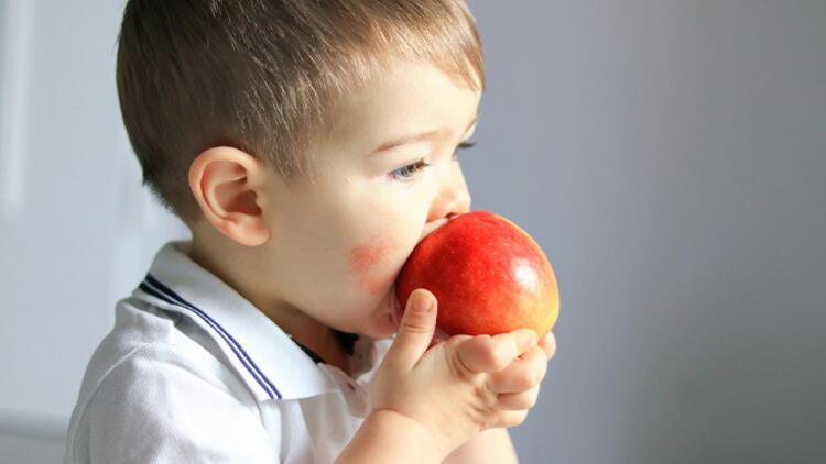 Besin alerjisi nedir? Besin alerjisi belirtileri ve tedavisi