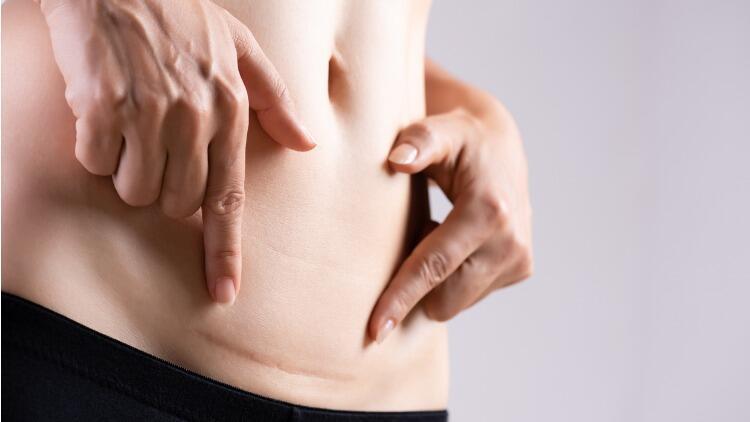 Labioplasti Nedir? Labioplasti Ameliyatı Kimlere Yapılır, Tehlikeli Mi?