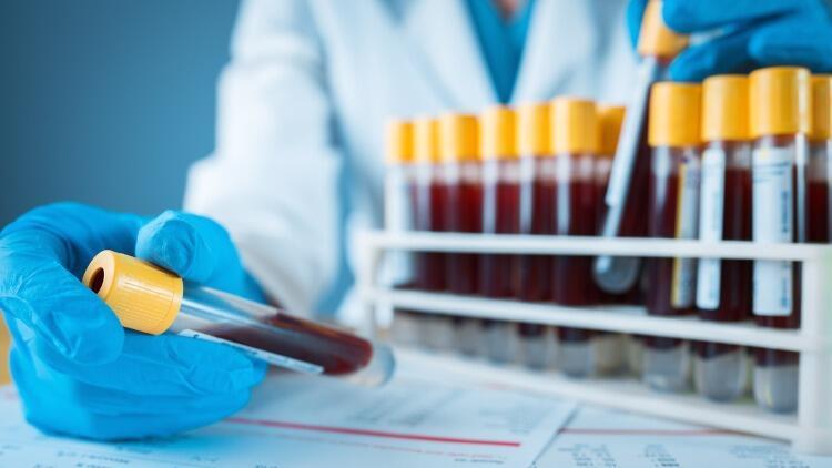 Kan Uyuşmazlığı Nasıl Olur, Nasıl Anlaşılır ve Tedavi Edilir?