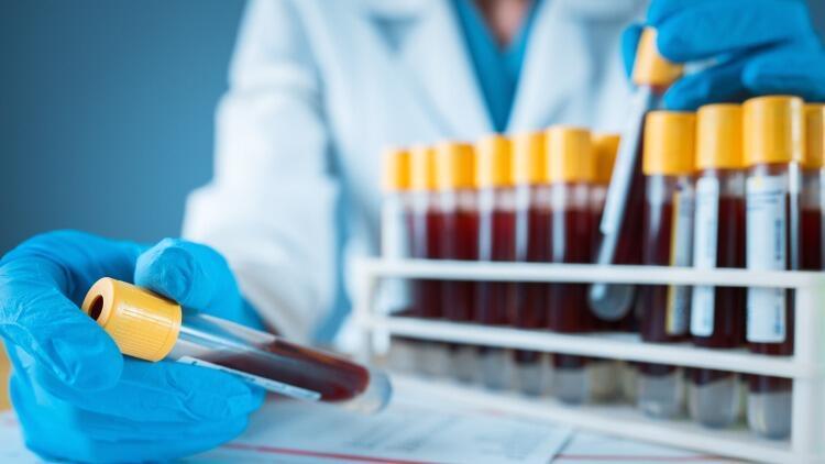 Kan tahlili sonucu ne zaman, kaç günde çıkar? Kan tahlili sonucu öğrenme bilgileri
