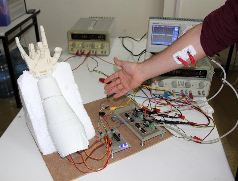 Mühendislik öğrencisi, kendine protez parmak yaptı