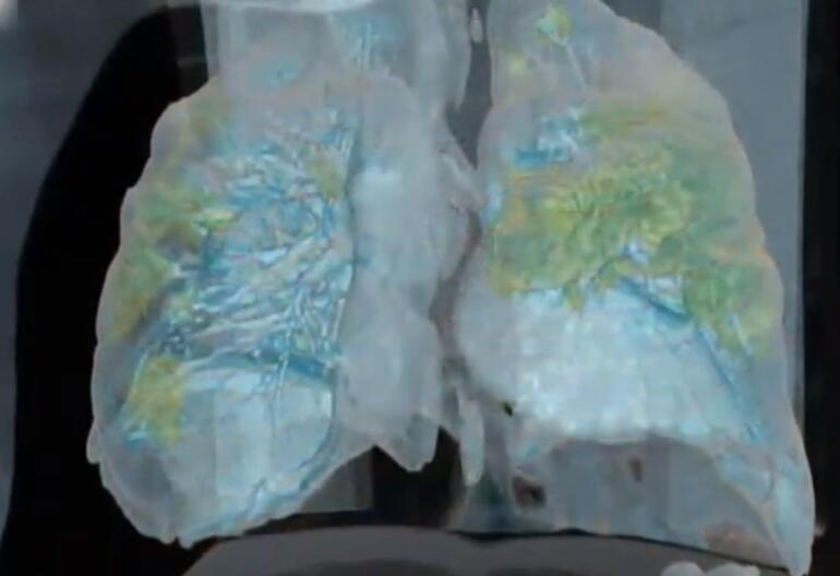 Elektron mikroskobu ile görüntülendi İşte virüsün hücrelerde yarattığı tahribat