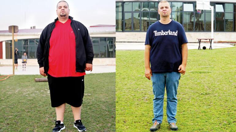 100 kişi toplamda 5 ton  zayıfladı... 'Kelepçe mideye değil, beyne takılmalı