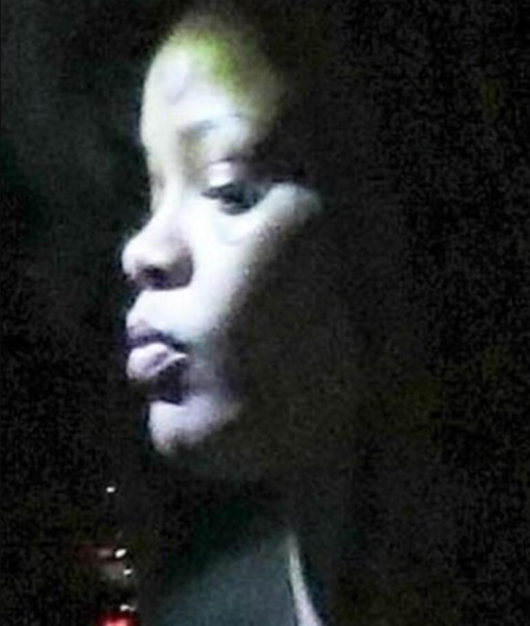 Rihanna yüzündeki morluklarla hayranlarını korkuttu