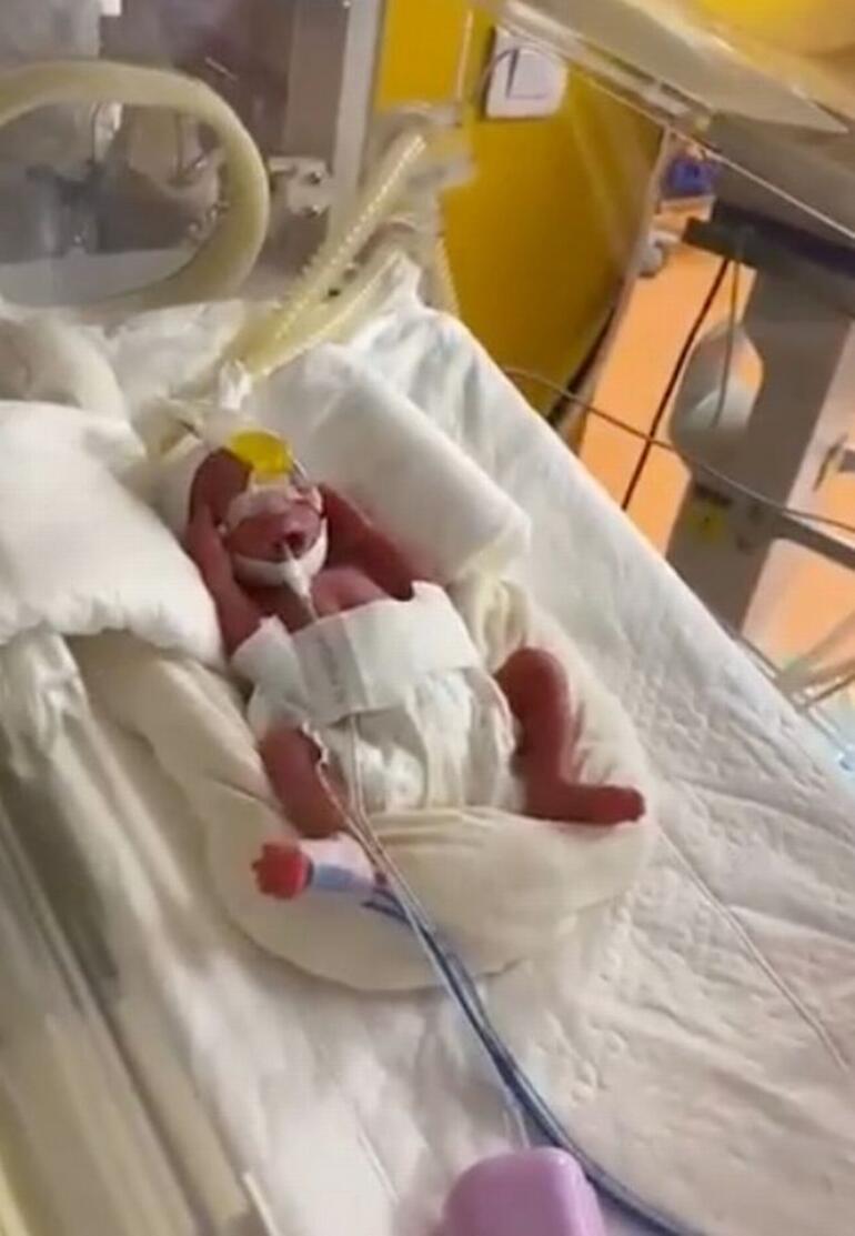 Dünya bu olayı konuşuyor: Malili kadın 9 bebek doğurdu