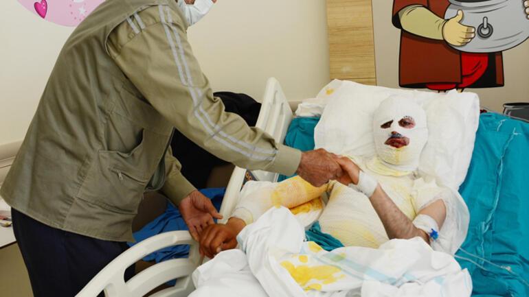 Üzerine yıldırım düştü... Feci şekilde yaralandı