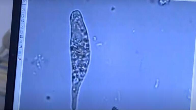 Son dakika: Müsilaj kâbusunun ilk test sonuçları açıklandı Deniz salyasının nedeni tek hücreli canlı...