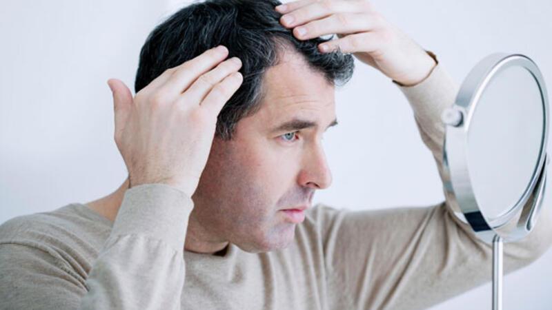 DHI saç ekimi nedir?