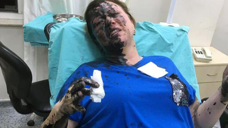 Genç kadını darp edip, üzerine siyah renkli sıvı madde döktüler