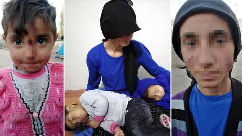 Eşi ve kızının yüzünü yaktı