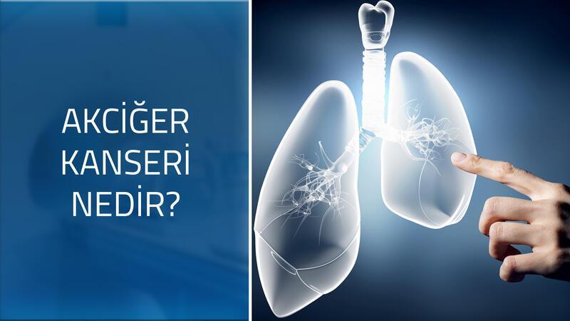 Akciğer kanserinin belirtileri nelerdir? Nasıl bir hastalıktır?