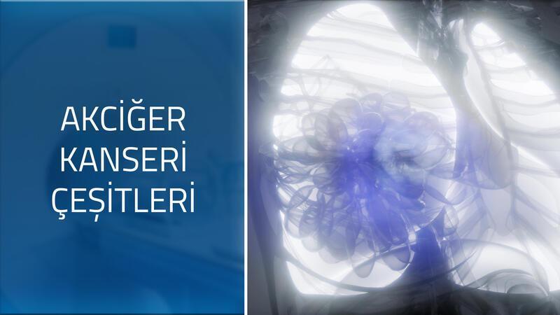 Akciğer kanseri türleri nelerdir?