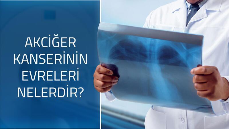 Akciğer kanserinin evreleri nelerdir?