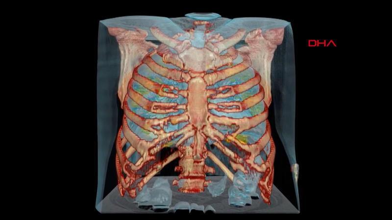 Corona virüs bulunan akciğerin 3D görüntüsü yayınlandı