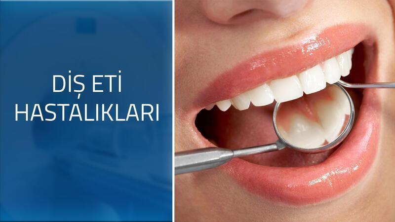Diş eti hastalıklarının belirtileri nelerdir?