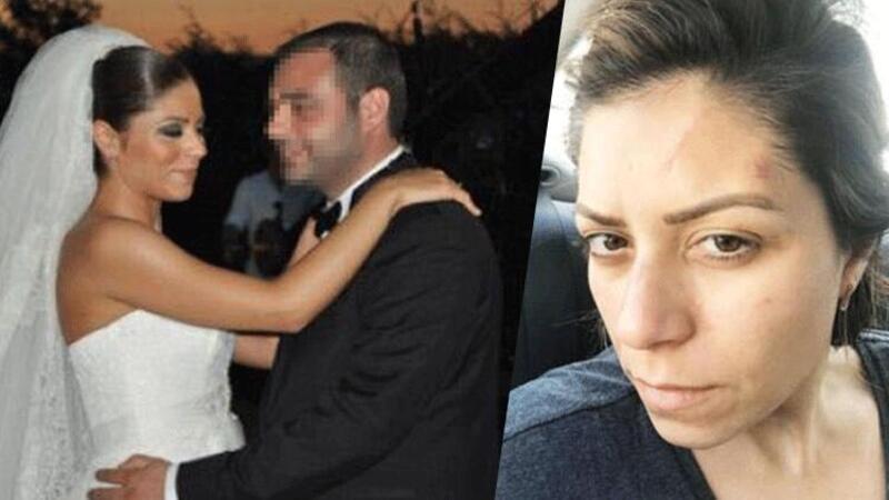 Boşandığı eşinden şiddet gören avukat, yaşadığı dehşeti anlattı
