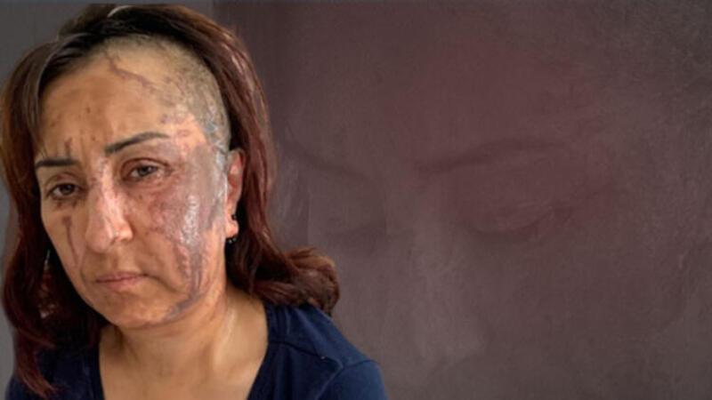 Isparta'da boşanmak isteyen 3 çocuk annesi eşine kezzapla saldırdı