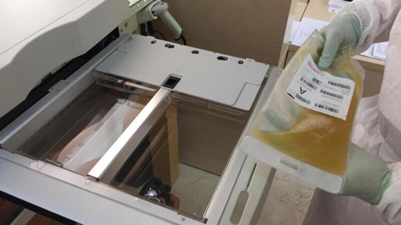 İstanbul Tıp Fakültesi'nde immün plazma tedavisinde yeni yöntem! Virüsler böyle arındırılıyor