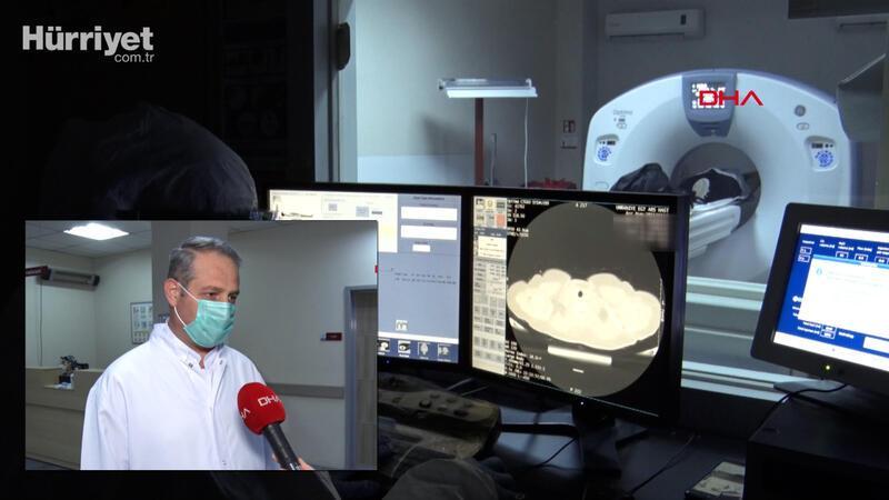 Akciğer tomografisiyle erken teşhis, kovid'e bağlı ölümleri azalttı