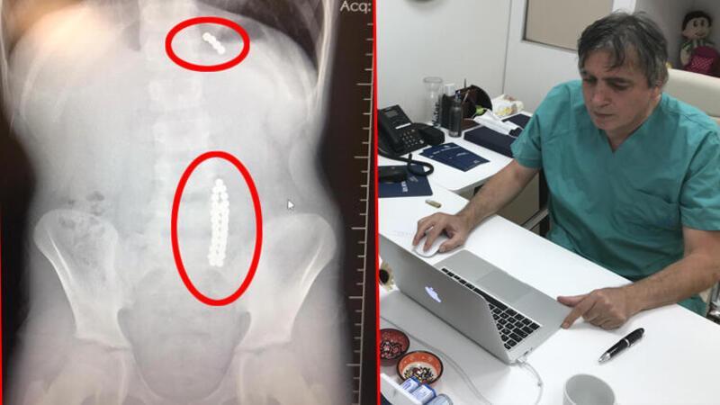 Karın ağrısıyla doktora gitti, midesinden 42 adet mıknatıs topu çıktı