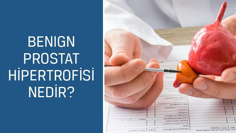 Üroloji Uzmanı Doç. Dr. Mustafa Kıraç cevaplıyor; Benign prostat hipertrofisi nedir, belirtileri ve tedavisi nasıldır?