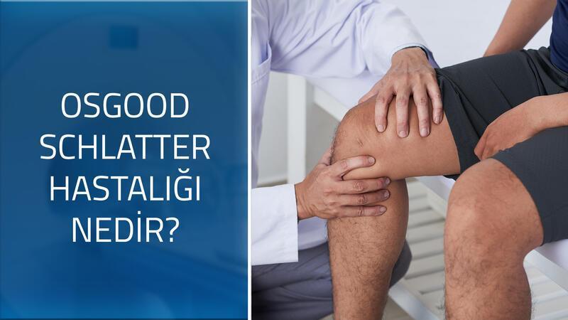 Ortopedi ve Travmatoloji Uzmanı Prof. Dr. Ufuk Özkaya cevaplıyor; Osgood schlatter hastalığı nedir, nasıl tedavi edilir?