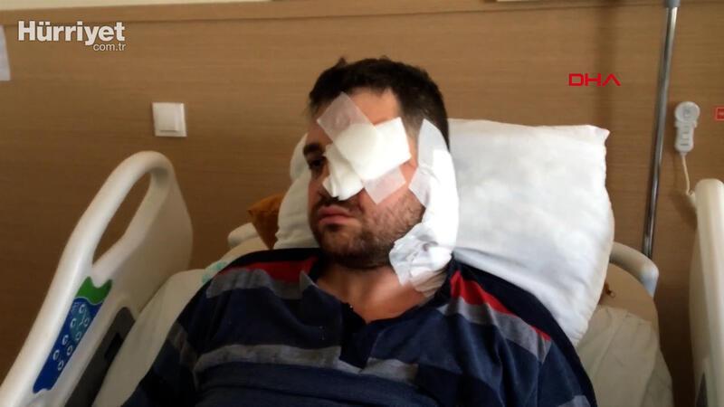 Bıçaklı saldırıda sol gözünü kaybeden avukat: Beni öldürmeye gelmiş