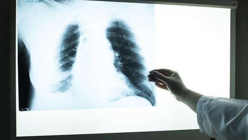 Türk mühendis, röntgen filmlerinden koronayı teşhis eden sistem geliştirdi