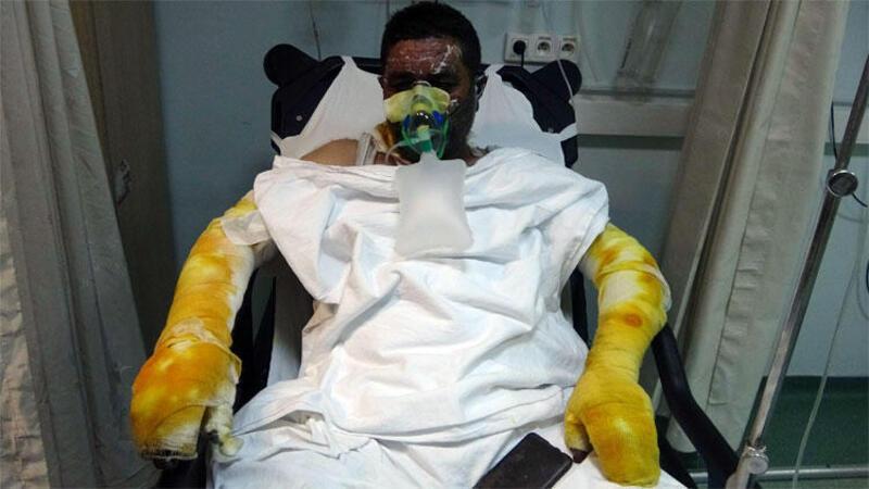 Yangında ailesini yanmaktan kurtardı, kendisi yanarak hastanelik oldu