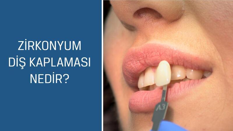 Diş Hekimi Şükrü Kahyaoğlu cevaplıyor; Zirkonyum diş kaplaması nedir?