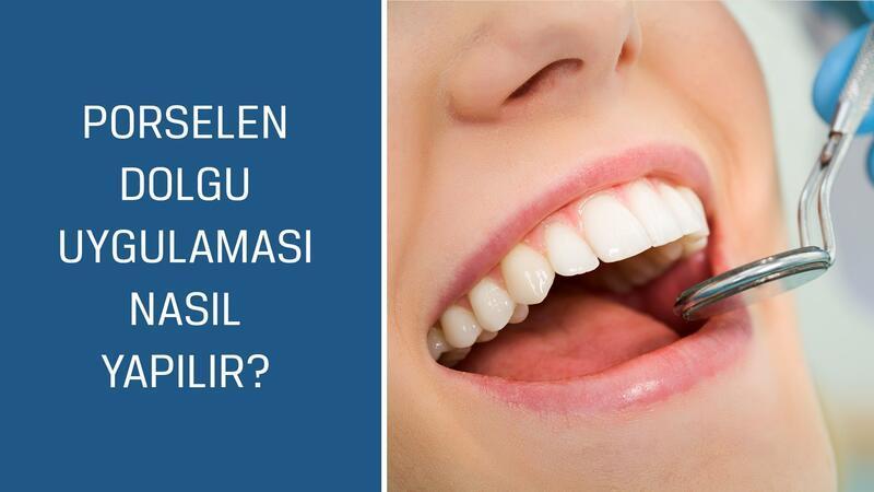 Diş Hekimi Şükrü Kahyaoğlu cevaplıyor; Porselen dolgu uygulaması nasıl yapılır?