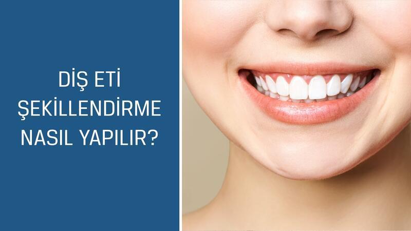 Diş Hekimi ve Protez Uzmanı Dr. Esma Sönmez cevaplıyor; Diş eti şekillendirme nasıl yapılır?