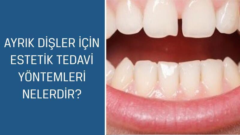 Diş Hekimi ve Protez Uzmanı Dr. Esma Sönmez cevaplıyor; Ayrık dişler için estetik tedavi yöntemleri nelerdir?