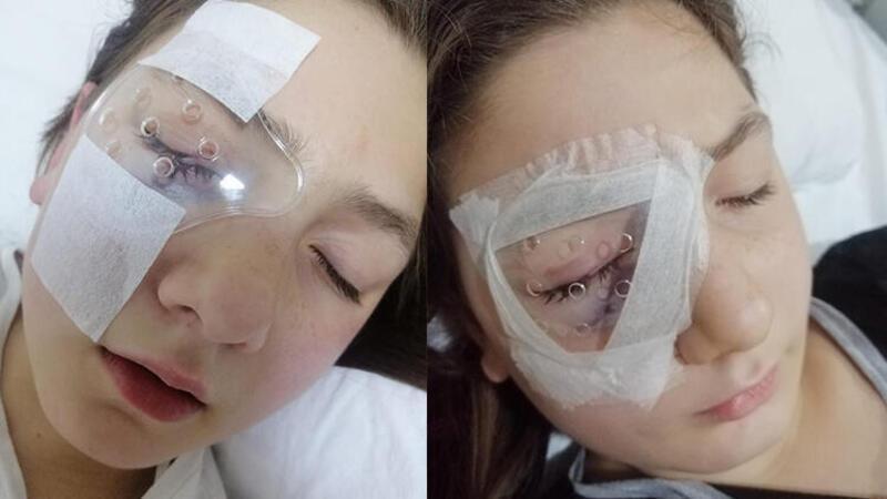 Yastık savaşında gözünden yaralanan Belinay'dan iyi haber
