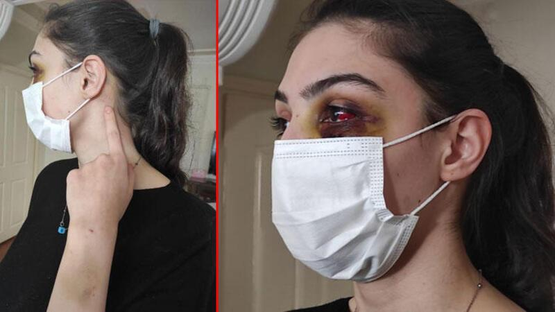 Telefonda video izlediği için kocasından şiddet gördü