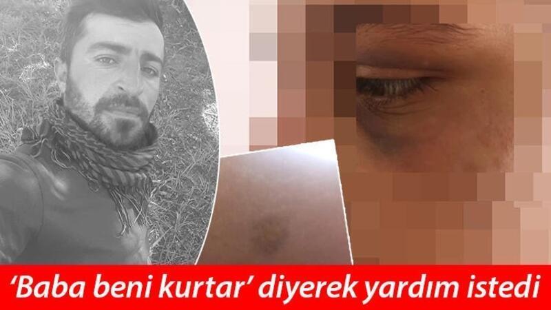 Dini nikahlı eşini 6 ay boyunca zincire bağlayıp, işkence yaptı; tutuklandı